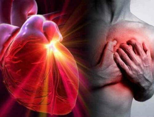 dolore al petto nell'infarto