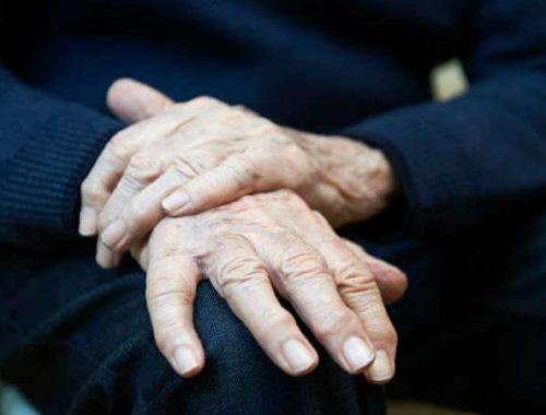 Mani uomo con Parkinson