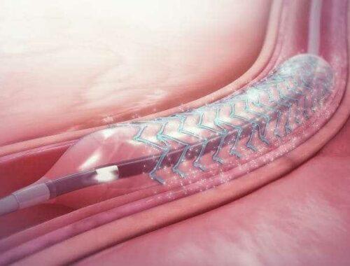 Stent posizionato in un'arteria